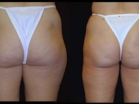 Atlanta Liposuction Patient 05 Before & After