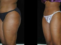Atlanta Liposuction Patient 06 Before & After