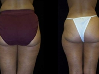 Atlanta Liposuction Patient 8 Before & After