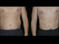 Atlanta Liposuction Patient 09 Before & After