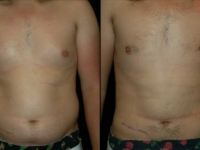 Atlanta Liposuction Patient 10 Before & After