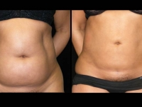Atlanta Liposuction Patient 29 Before & After