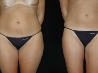 Atlanta Liposuction Patient 11 Before & After