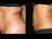 Atlanta Liposuction Patient 31 Before & After