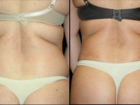 Atlanta Liposuction Patient 13 Before & After