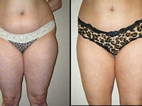 Atlanta Liposuction Patient 16 Before & After