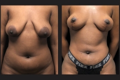 Atlanta Liposuction Patient 45 Before & After