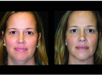 Atlanta Liposuction Patient 43 Before & After