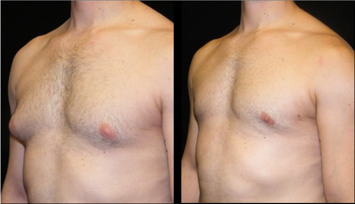 Atlanta Male Breast Reduction Patient 24 Before & After