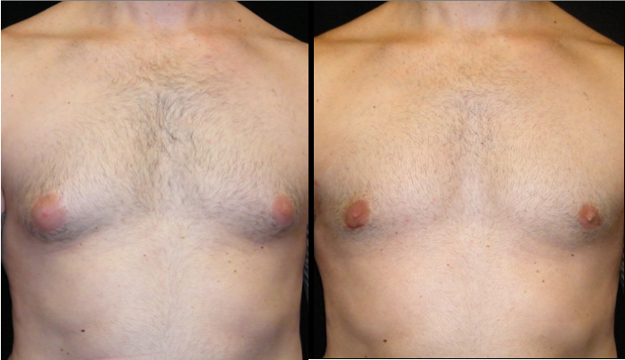 Atlanta Male Breast Reduction Patient 20 Before & After