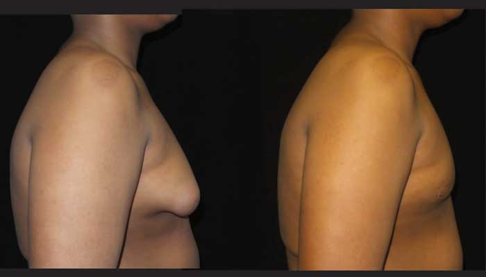 Atlanta Male Breast Reduction Patient 27 Before & After