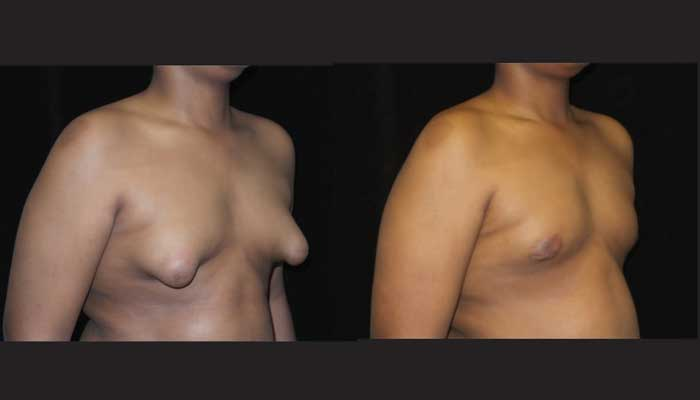 Atlanta Male Breast Reduction Patient 26 Before & After
