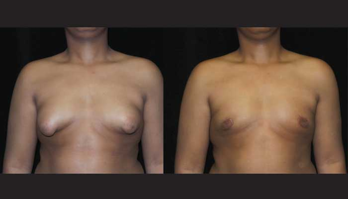 Atlanta Male Breast Reduction Patient 25 Before & After