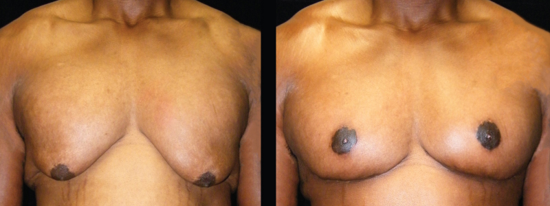 Atlanta Male Breast Reduction Patient 1 Before & After