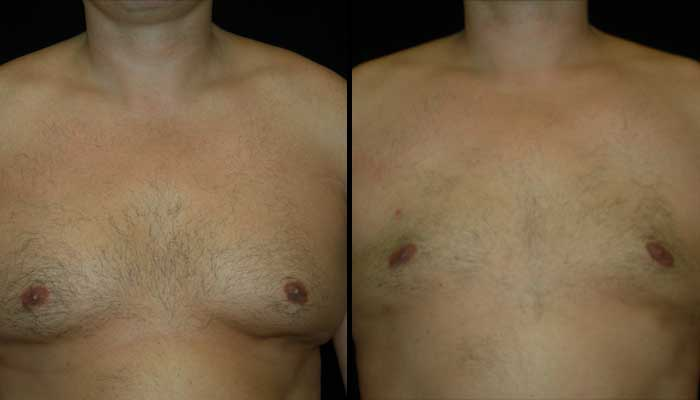 Atlanta Male Breast Reduction Patient 4 Before & After