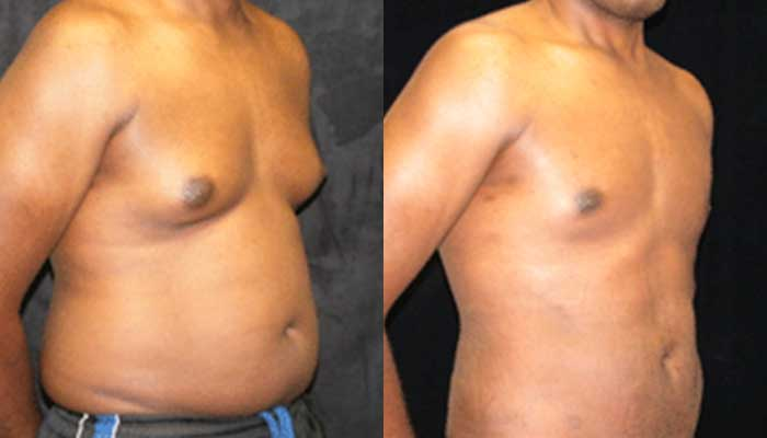 Atlanta Male Breast Reduction Patient 14 Before & After