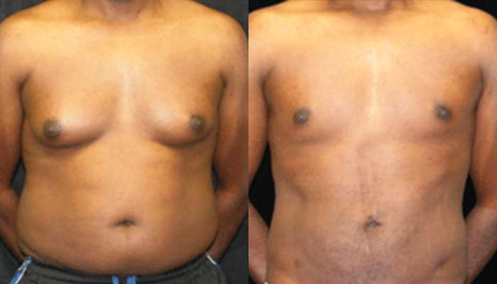 Atlanta Male Breast Reduction Patient 15 Before & After
