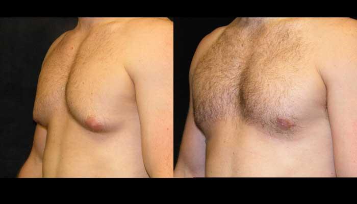 Atlanta Male Breast Reduction Patient 19 Before & After