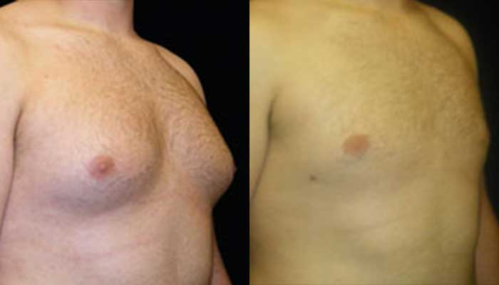 Atlanta Male Breast Reduction Patient 6 Before & After
