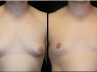 Atlanta Male Breast Reduction Patient 23 Before & After
