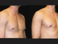 Atlanta Male Breast Reduction Patient 22 Before & After