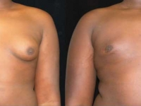 Atlanta Male Breast Reduction Patient 2 Before & After