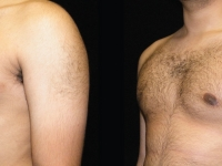 Atlanta Male Breast Reduction Patient 3 Before & After
