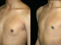 Atlanta Male Breast Reduction Patient 10 Before & After