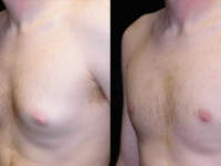 Atlanta Male Breast Reduction Patient 12 Before & After