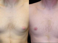 Atlanta Male Breast Reduction Patient 13 Before & After