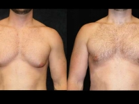 Atlanta Male Breast Reduction Patient 18 Before & After