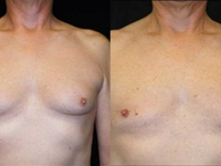 Atlanta Male Breast Reduction Patient 5 Before & After