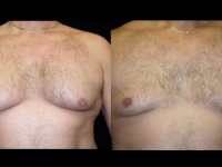 Atlanta Male Breast Reduction Patient 7 Before & After