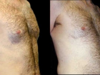 Atlanta Male Breast Reduction Patient 8 Before & After