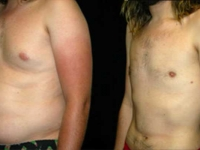 Atlanta Male Breast Reduction Patient 9 Before & After