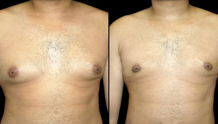 Male Plastic Surgery Patient 2 Before & After