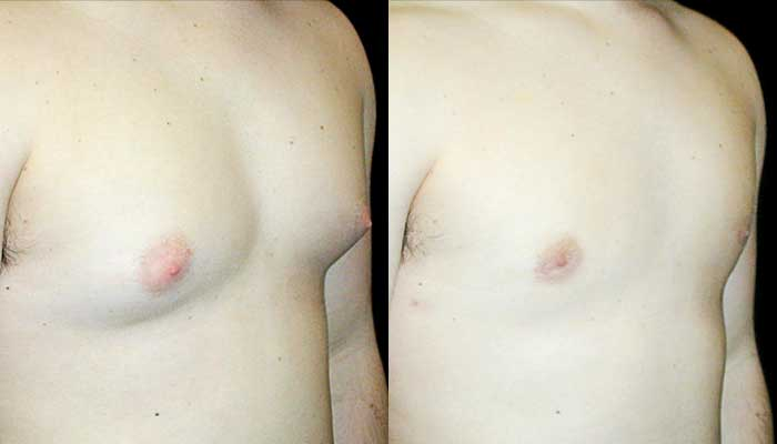 Male Plastic Surgery Patient 3 Before & After