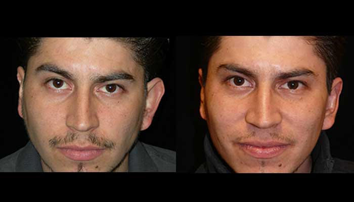 Male Plastic Surgery Patient 4 Before & After