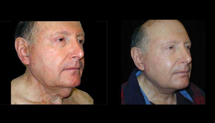 Male Plastic Surgery Patient 5 Before & After