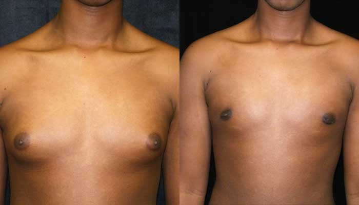 Male Plastic Surgery Patient 7 Before & After