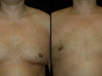 Male Plastic Surgery Patient 1 Before & After