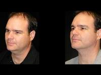 Male Plastic Surgery Patient 6 Before & After