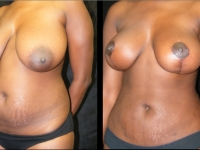 Atlanta Mommy Makeover Patient 30 Before & After