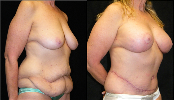 Atlanta Post Bariatric Surgery Patient 17 Before & After