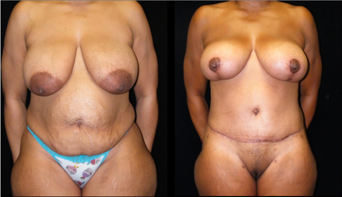 Atlanta Post Bariatric Surgery Patient 23 Before & After