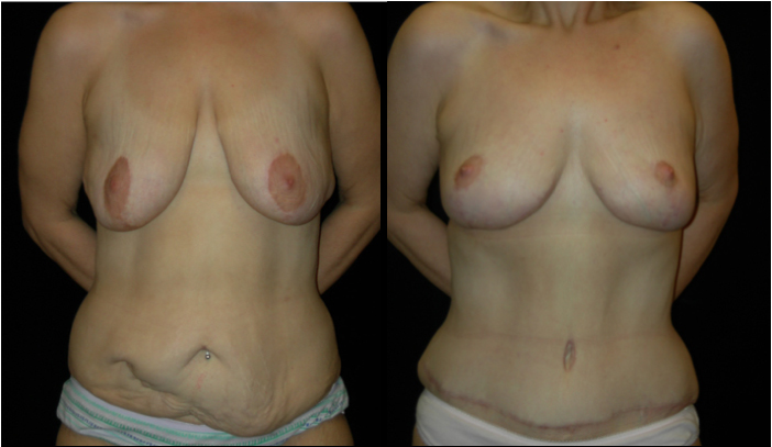 Atlanta Post Bariatric Surgery Patient 30 Before & After