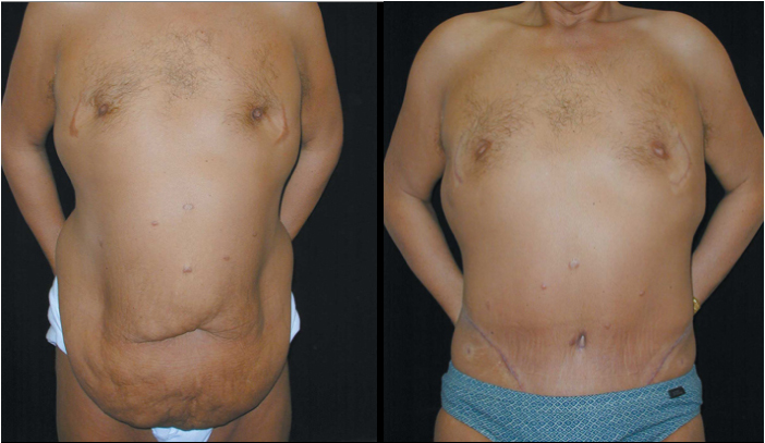 Atlanta Post Bariatric Surgery Patient 27 Before & After