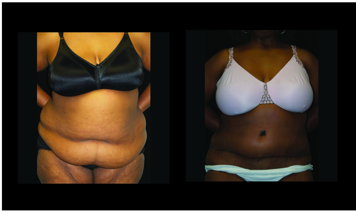 Atlanta Post Bariatric Surgery Patient 39 Before & After
