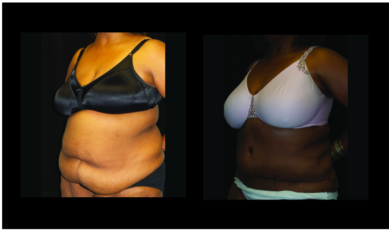 Atlanta Post Bariatric Surgery Patient 40 Before & After