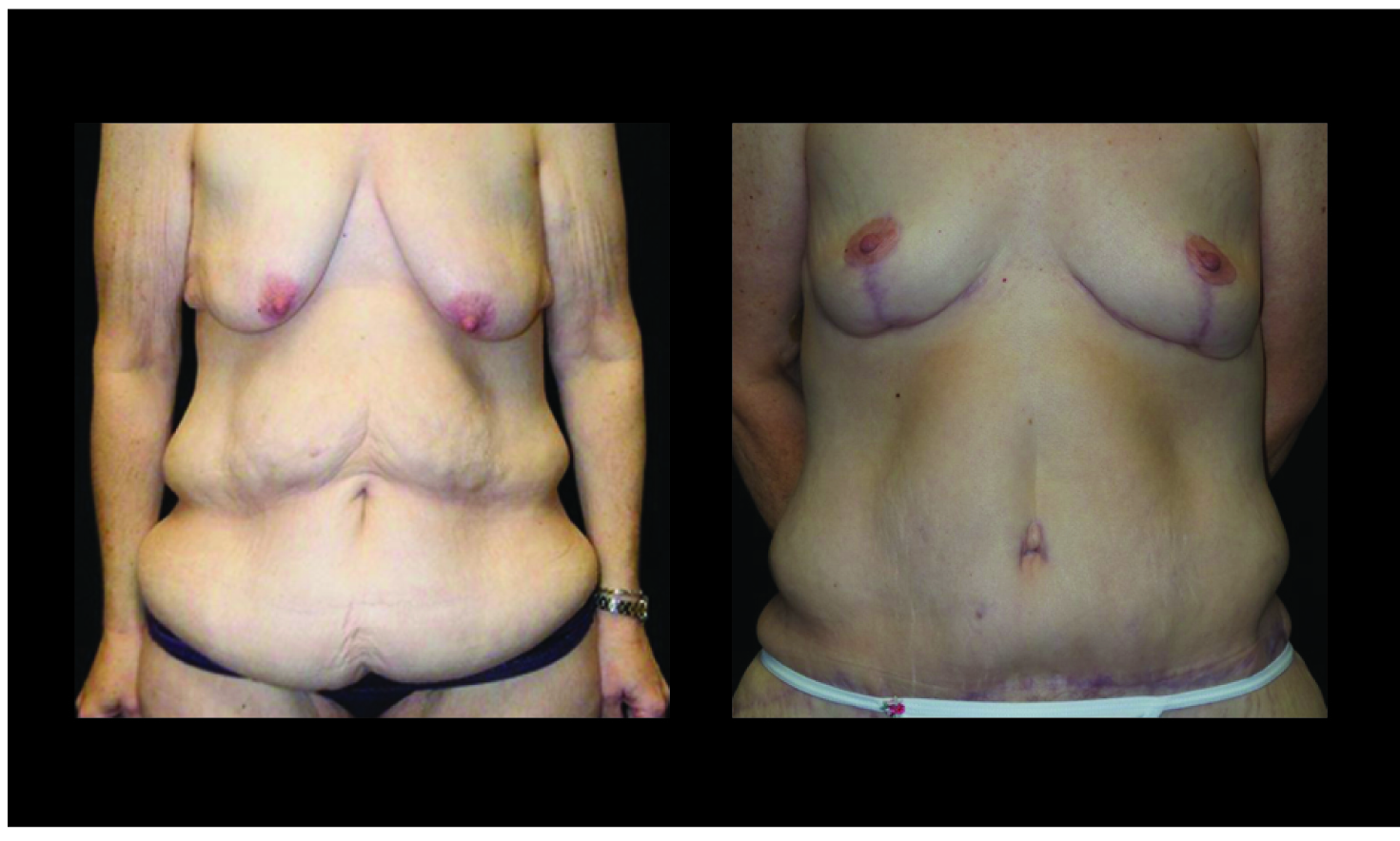 Atlanta Post Bariatric Surgery Patient 34 Before & After